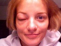 Отек глаза из-за укуса комара