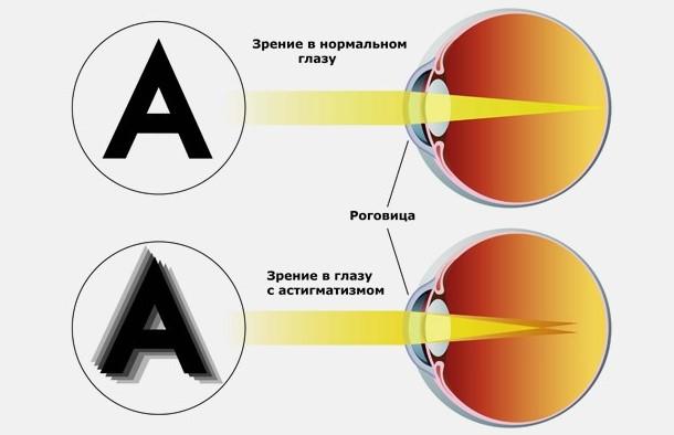 Физиологический астигматизм