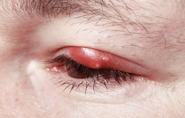 Первые симптомы блефарита