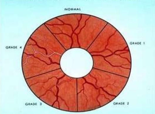 Стадии ангиосклероза