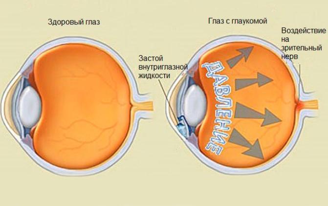 Нормальный глаз и глаз с глаукомой
