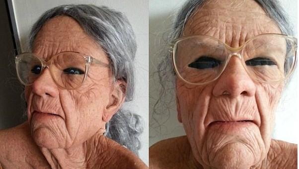 Склеральные линзы на пожилом человеке
