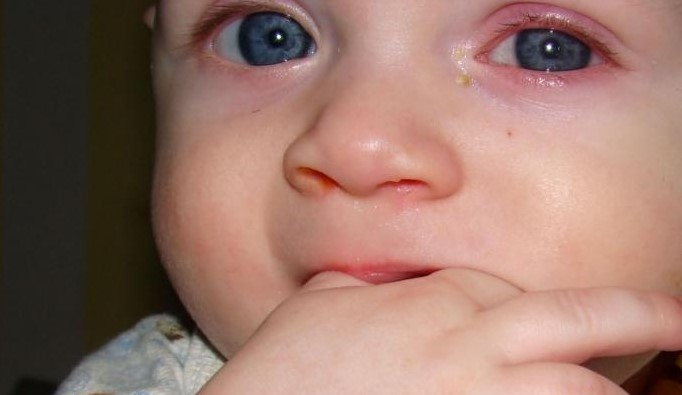 Вирусный конъюнктивит у новорожденных