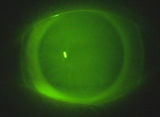 Зеленые склеральные линзы