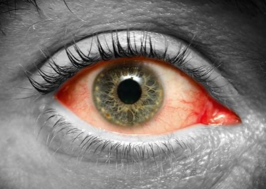 Капли при травме глаза, какие использоваь