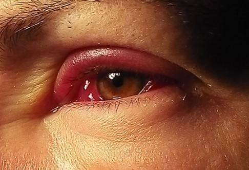 Как лечить воспаление глаз каплями