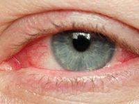 Болят глаза от линз