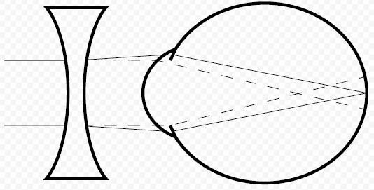 Двояковогнутые линзы при близорукости