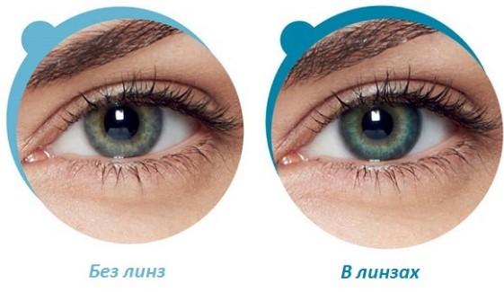 Глаза в линзах и без них