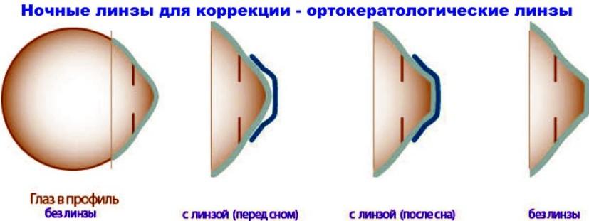Линзы для лечения близорукости