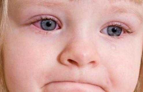 Лучшие мази от конъюнктивита для деток