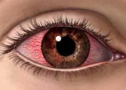 Мази от воспаления глаз