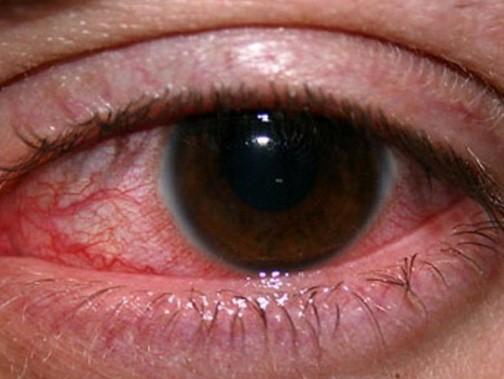 Симптомы гипоксии роговицы