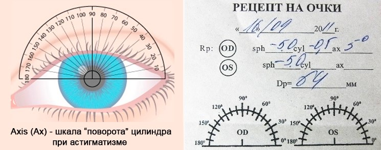 Поворот цилиндра при астигматизме