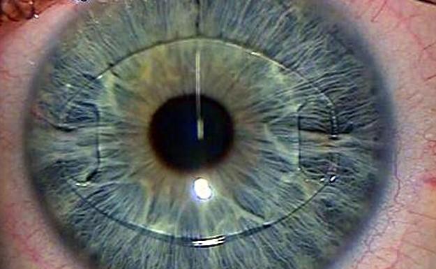 Глаз с факичной ИОЛ