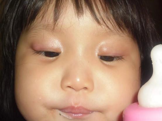 Халязион у ребенка