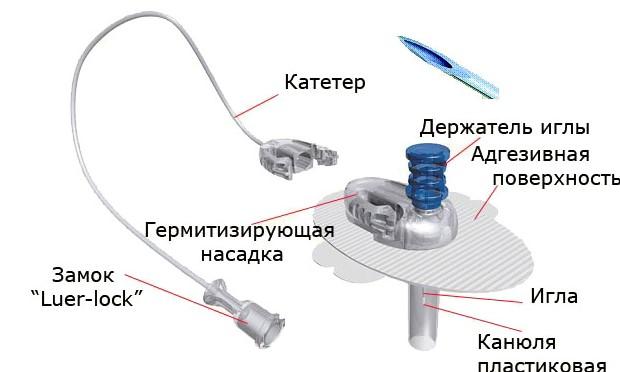 Инфузионная канюля