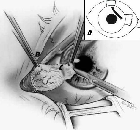 Лечение птеригиума