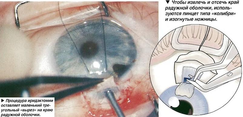 Базальная иридэктомия