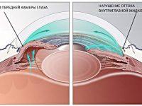 Проведение лазерной гониопунктуры