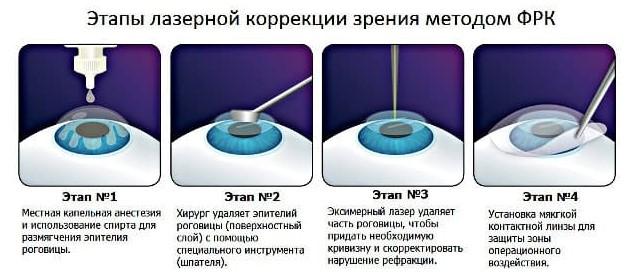 Методика ФРК
