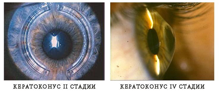 Стадии кератоконуса