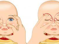 Массаж слезного канала новорожденных