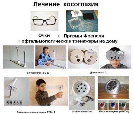 Методы лечения косоглазия