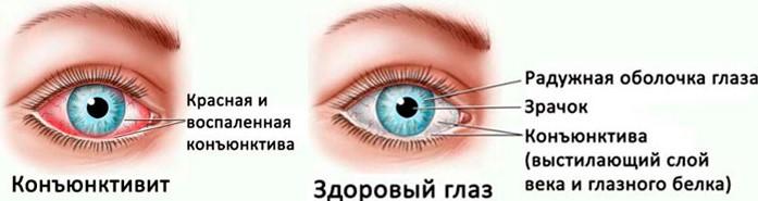 Здоровый глаз и глаз с конъюнктивитом
