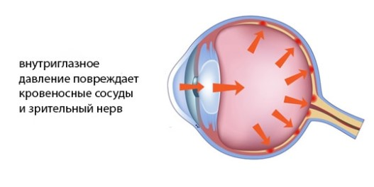 Измерение внутриглазного давления
