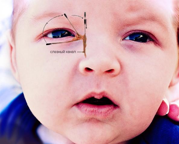 Зондирование слезного канала у детей