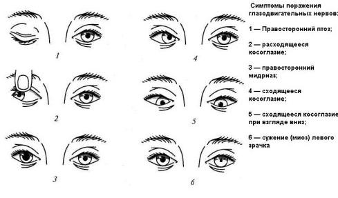 Основные симптомы косоглазия