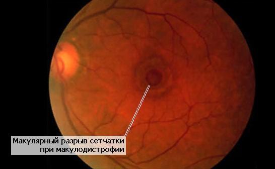 Разрыв макулы глаза