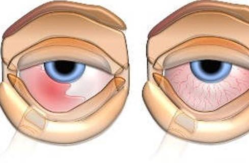 Антибиотик для глаз Алемтоб