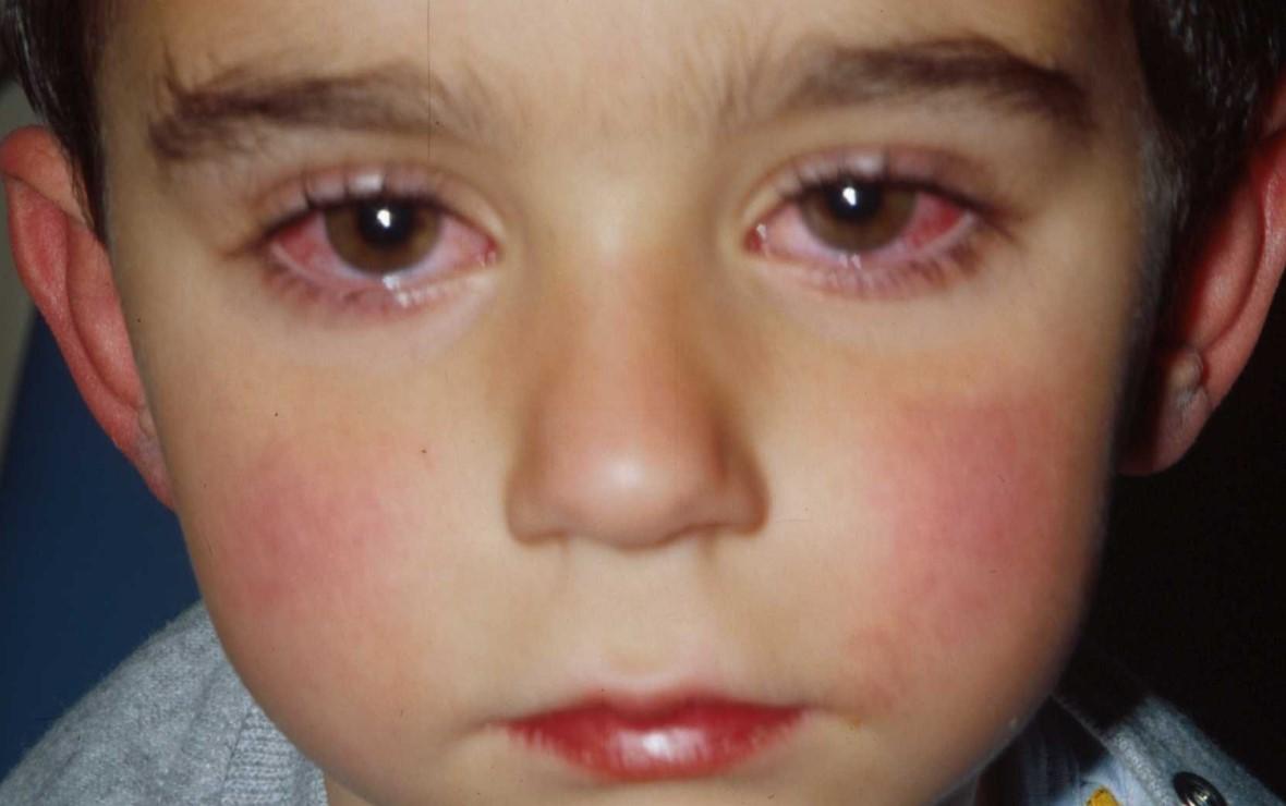 Красные глаза у ребенка