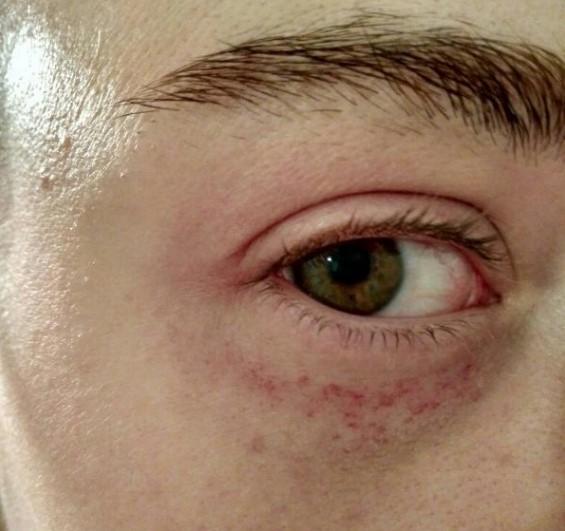 Лопнувший сосуд под глазом