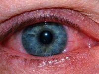 Лечение покраснения глаз в домашних условиях