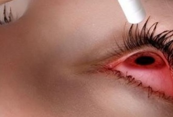 Противовоспалительные капли Дексаметазонлонг