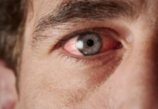 Глазные капли Ксонеф форма выпуска