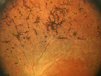 Абиотрофия сетчатки