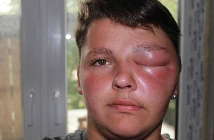 Опухший глаз после укуса комара