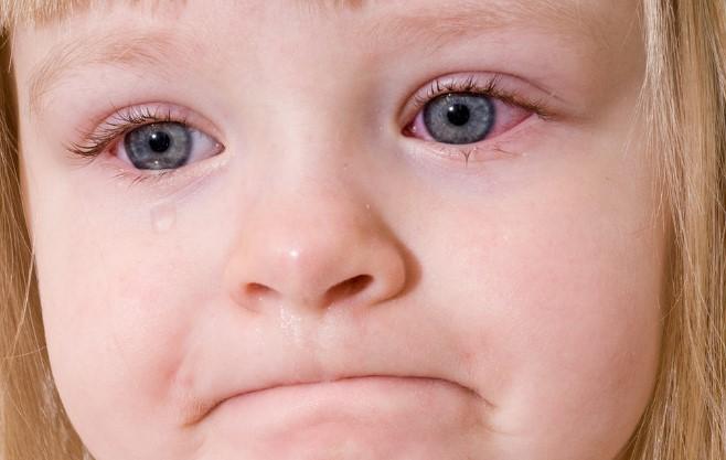 Детские глазные капли от покраснения
