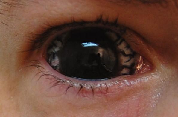 Черные склеральные линзы