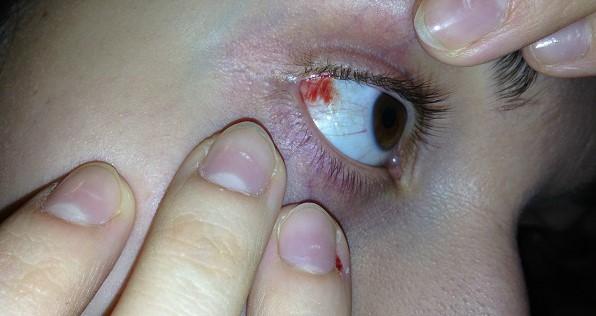 Микроразрывы на глазу