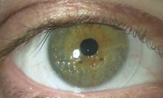 Отложения на контактных линзах