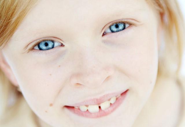 Цветные контактные линзы у ребенка