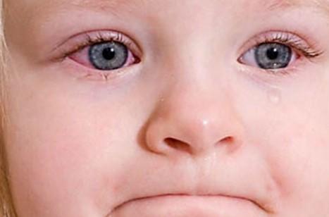 конъюнктивит детский вид