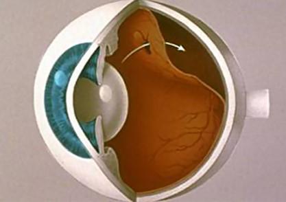 вид сетчатки глаза