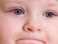 Мази от детского конъюнктивита