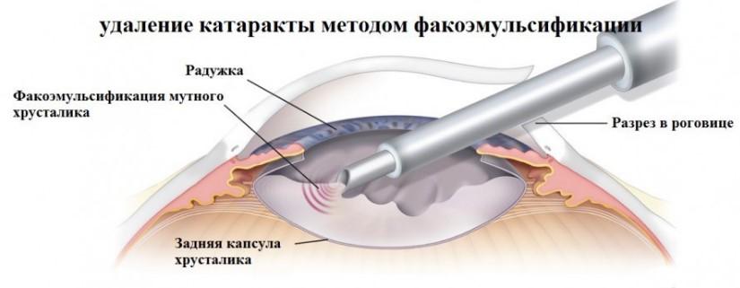 Факоэмульсификация